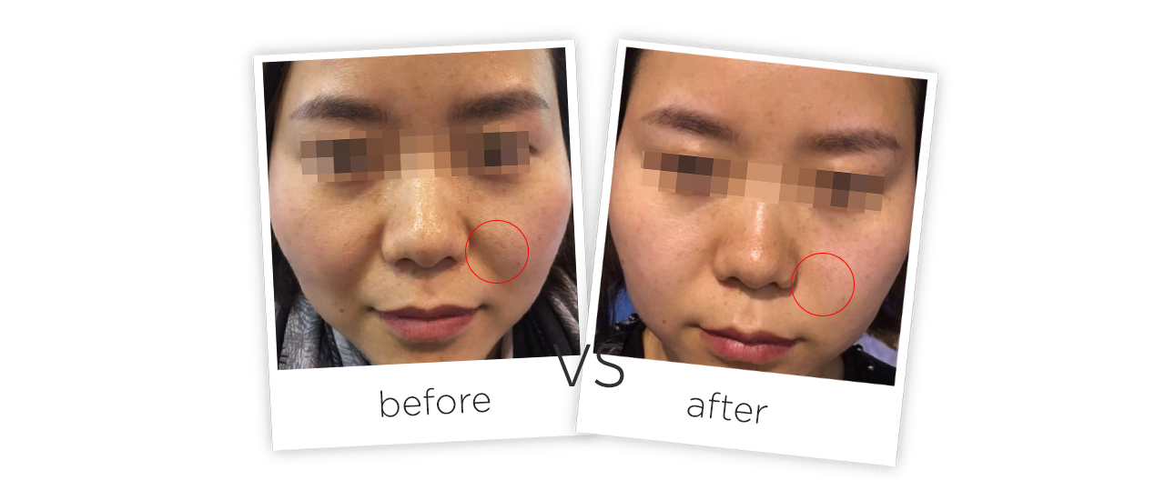 HIFU Facial Wrinkle Removal System Before&After
