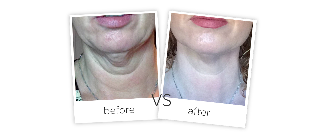 HIFU Facial Wrinkle Removal System Treatment results