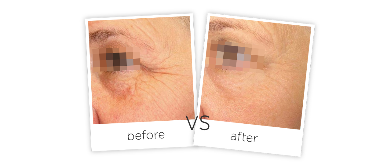 HIFU Facial Wrinkle Removal System Treatment Before&After