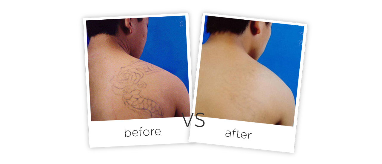 Treatment  /  Tattoo Removal and Pigmentatio Treatment results