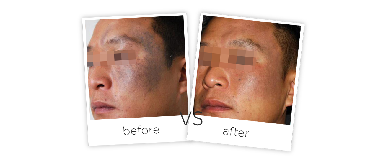 Treatment  /  Tattoo Removal and Pigmentatio Treatment Before&After