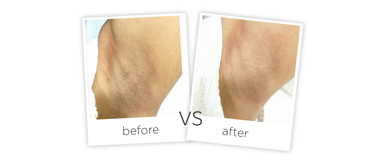 808nm Diode Laser Hair Removal Before&After