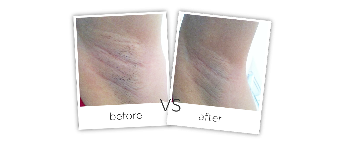 808nm Diode Laser Hair Removal Treatment results