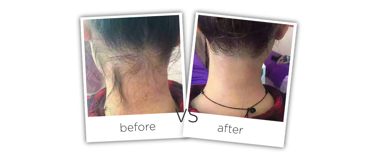 808nm Diode Laser Hair Removal Treatment Before&After